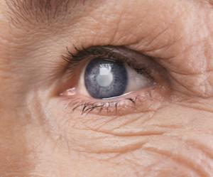 Un œil d'une personne âgée souffrant de la cataracte