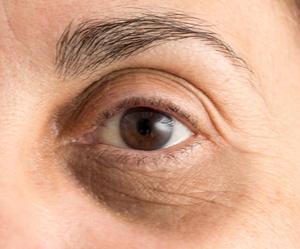 Un oeil avec des cernes