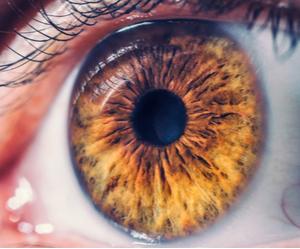 un œil souffrant de décollement de rétine