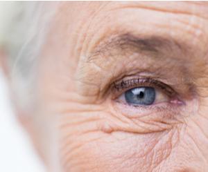 l'oeil d'un vieil homme soufrant de la DMLA