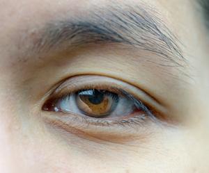 Un œil affichant le ptosis